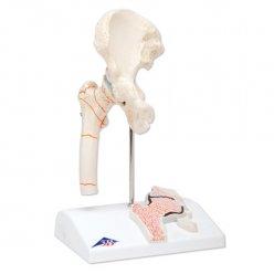 Zánět kostních kloubů - model