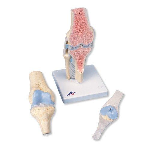 Průřez kolenním kloubem - 3 části
