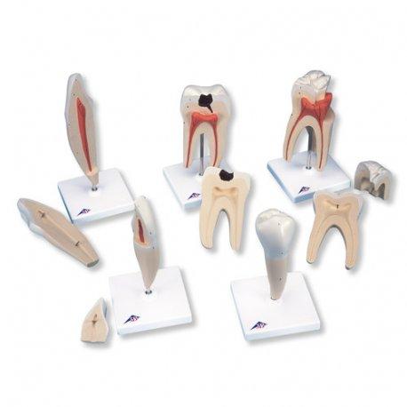 Série modelů zubů - 5 modelů