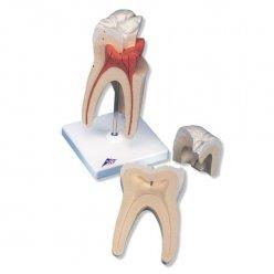 Horní stolička s trojitým kořenem - 3 části