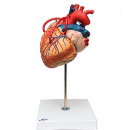 Model srdce s bypassem - 4 části