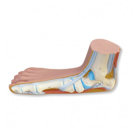 Model nohy - plochá noha