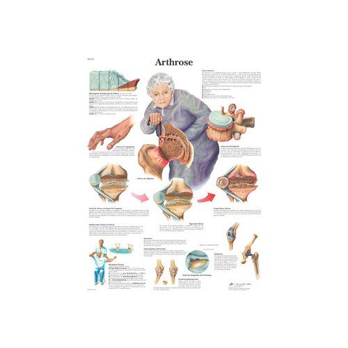 Schéma - artróza - lamino - 50x67 cm