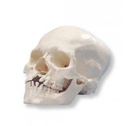 Model mikrocefalické lebky
