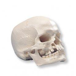 Lebka s rozštěpem čelisti a patra