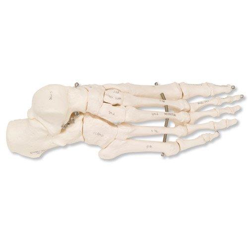 Kostra nohy spojená drátem